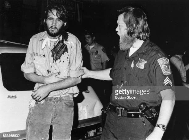 Victim of beating at Dudley Street is brought into the hospital after violence in the Roxbury neighborhood of Boston, Aug. 13, 1975.
