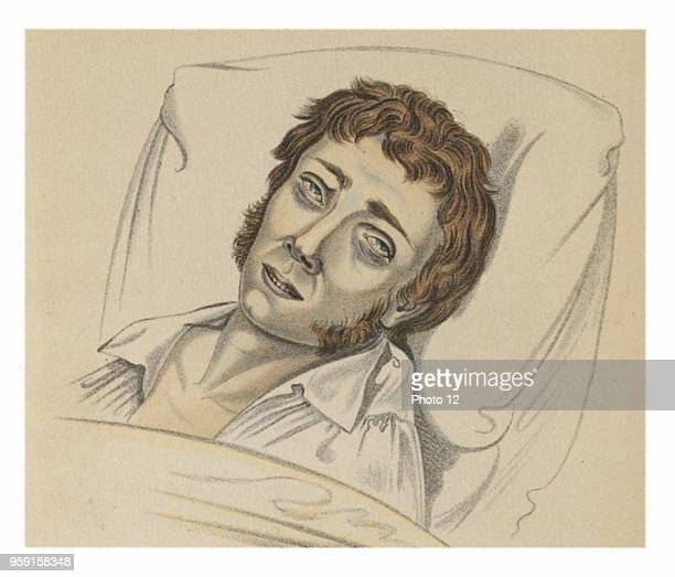 A victim of cholera from the work Physionomy of sick persons by professor KH Baumgartner