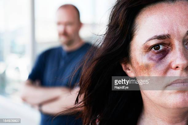 victim of domestic violence with threatening man in background - echtgenote stockfoto's en -beelden