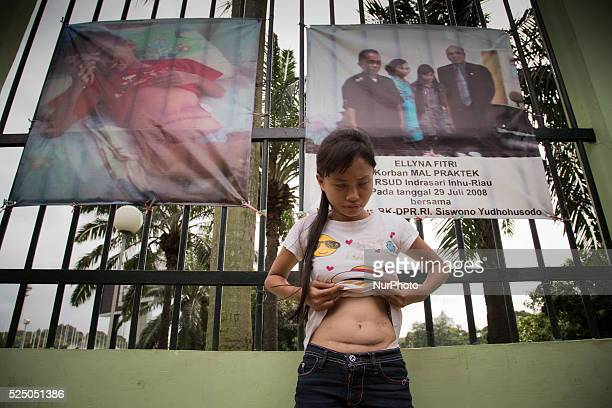 Victim of Malpractice in Indonesia Ellyna Fitri showing his stomach after the wrong appendectomy procedur by the doctor treatment at Public Hospital...