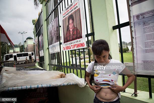 Victim of Malpractice in Indonesia Ellyna Fitri showing his stomach infront at her tend with parents infront of Indonesian house of representative...