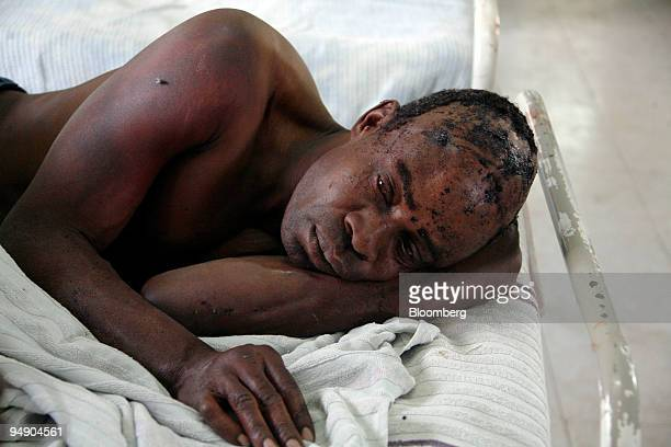 A victim of postelection violence receives treatment in a hospital in Naivasha 90 km from Nairobi Kenya on Monday Jan 28 2008 Kenya's spreading...