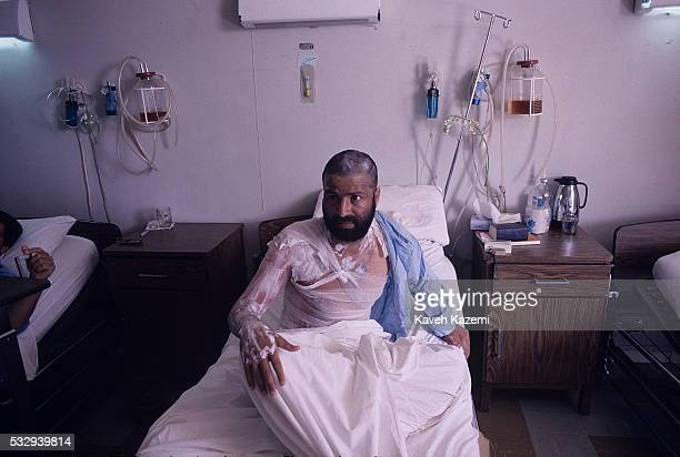 Victim of Saddam Hussein's chemical gas attack on Halabja, lies in Labbafinejad hospital bed with severe wounds, 22nd March 1988. Towards the end of...