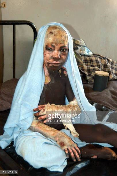 A victim of the Lord's Resistance Army rebel 21 February 2004 attack sits 23 February 2004 at one of the Internally Displaced Camp hospital near...
