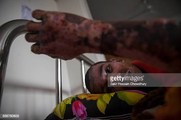 A victims of a recent bomb attack in a bus receives treatment at Dhaka Medical College Hospital during the ongoing nationwide blockade called by the...