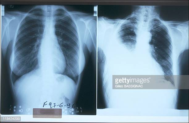 Victims Of Asbestos Bear Complaint On June 27th 1996 In France Lung XRay On The Left Normal Lung On The Right Mesothelioma