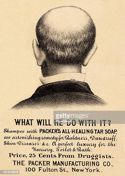 A Victorian trade card for a Packer's AllHealing Tar Soap a hair restorative accompanied by an illustration of back of balding man's head