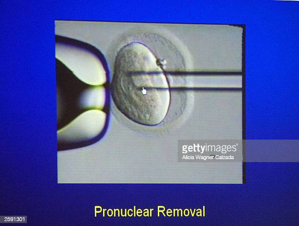A video of the removal of DNA from an egg is displayed on a screen as Dr John Zhang speaks about pregnancy derived from human nuclear transfer at the...