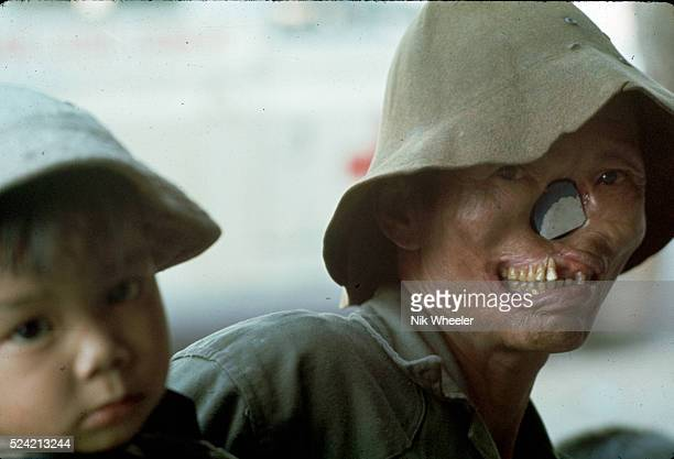 Vietnamese man suffering from leprosy holding a small child in the central highlands of Vietnam