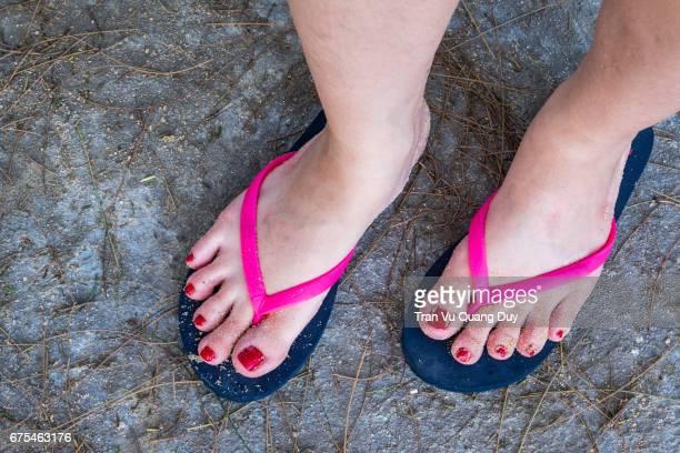 Vietnamese woman's feet.