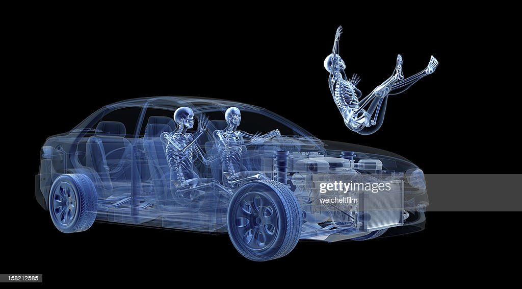 View car accident in X-ray : Stock Photo