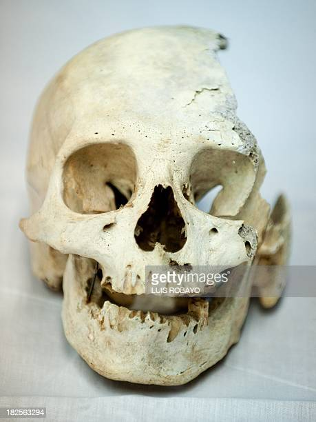 View of a skull of preHispanic indigenous woman at the PreHispanic Ossuarty in Cali Colombia on September 30 2013 The ossuary preserves some 250 bone...