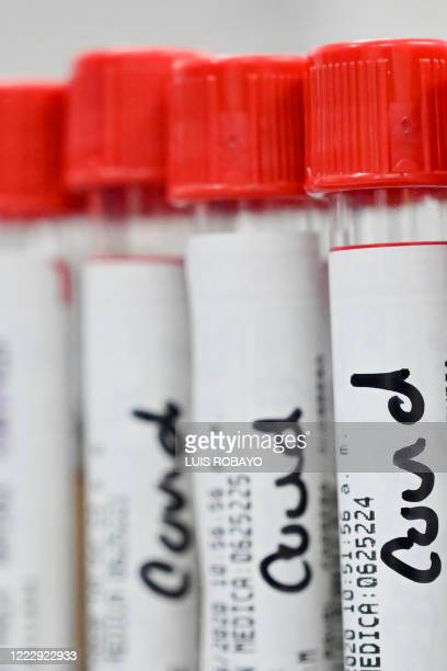 View of blood samples for COVID-19 analysis at the Microanalisis Integral Laboratory of the Versalles Clinic, on June 25, 2020 in Cali, Colombia.