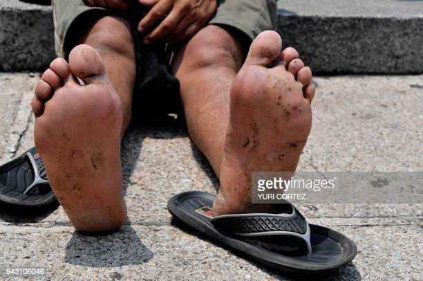 View of the feet of a Central American migrant taking part in the Migrant Via Crucis caravan towards the United States shows his blistered feet while...