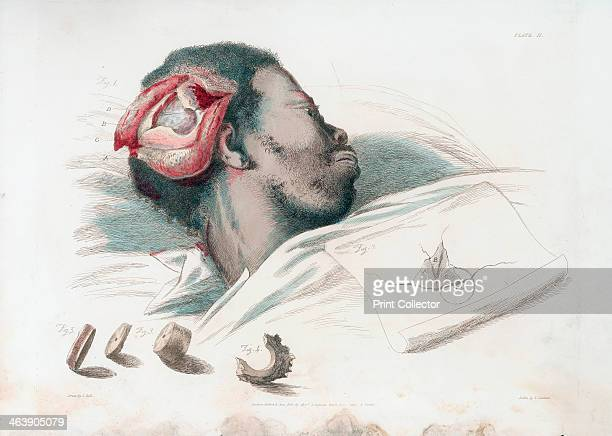 View of wound in skull after trephination and removal of shattered bone piece at bottom left From Charles Bell The Great Operations of Surgery London...