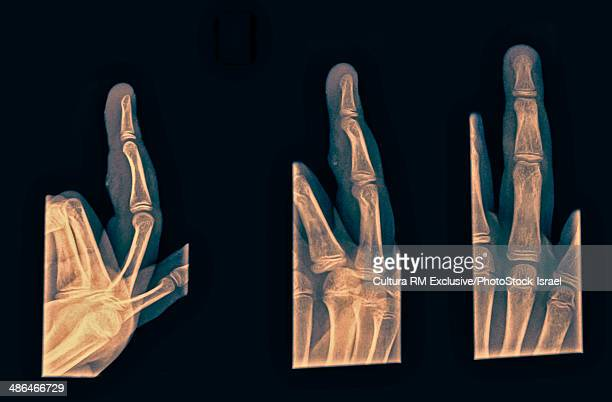 3 views of fourth finger right hand after suffering contusion with abrasion, no fracture or dislocation