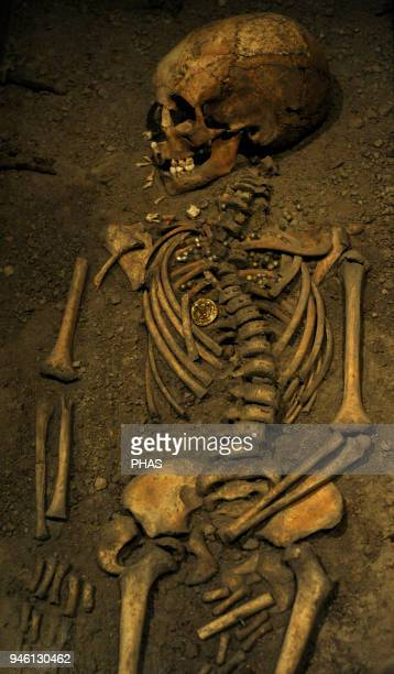 Viking Age Birka girl Died at age 6 years 10th century Skeleton Historical Museum Stockholm Sweden