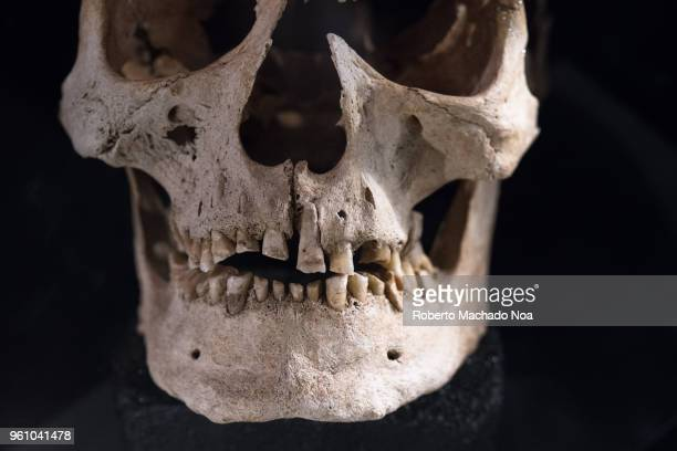 Viking or Norse culture objects Male Cranium with heavily worn out teeth The study of archeological findings reveals that current conceptions often...