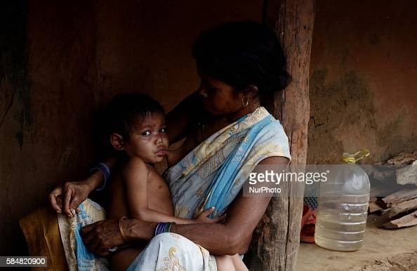 essay on malnutrition in india Today's topic is malnutrition in india malnutrition refers to the situation where there is an unbalanced diet in which some nutrients are in excess.