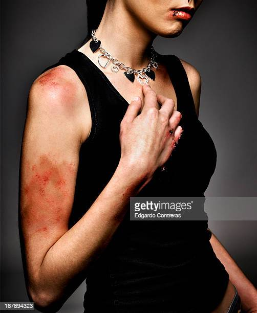 violence against women - bruise stock photos and pictures