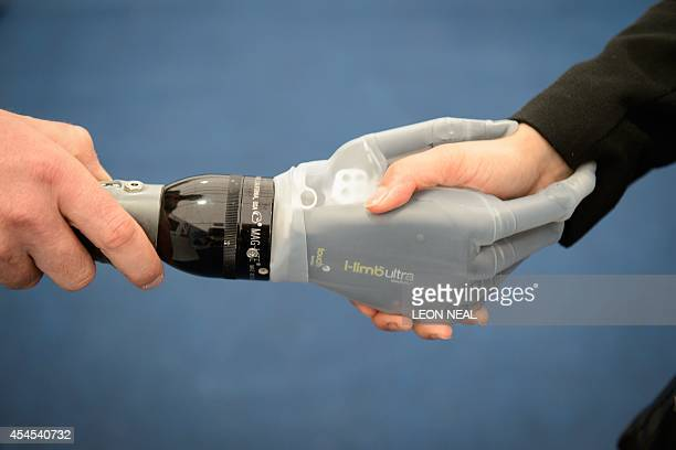 A VirtuLimb artifical hand is displayed on one of the exhibition stands at Celtic Manor Resort on September 3 ahead of the NATO Summit 2014 Running...
