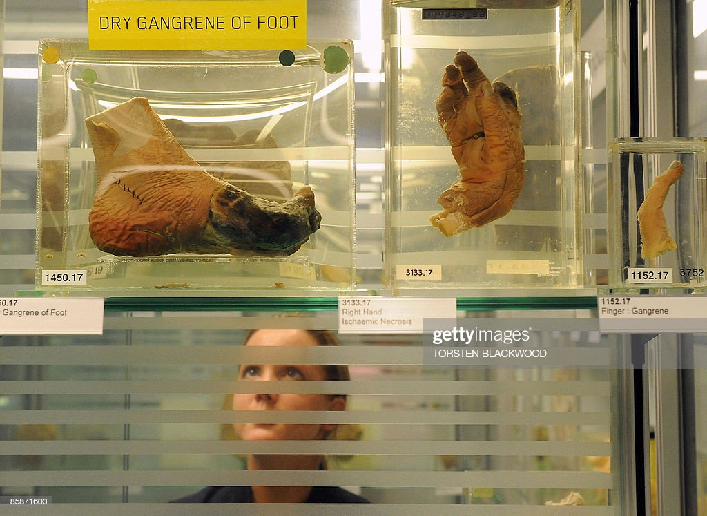 A visitor gazes at severed body parts in : News Photo