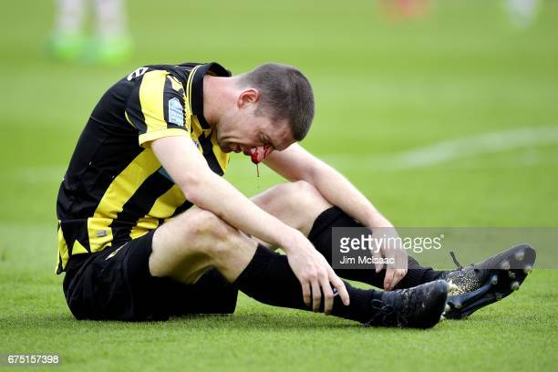 Vitesse's Dutch defender Arnold Kruiswijk reacts as his nose bleeds after colliding with an AZ Alkmaar player during the Dutch Cup final football...