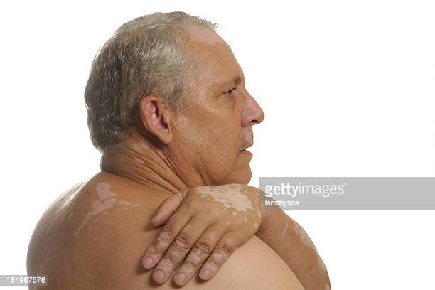 vitiligo on back, face and hand - skin cancer face stock photos and pictures