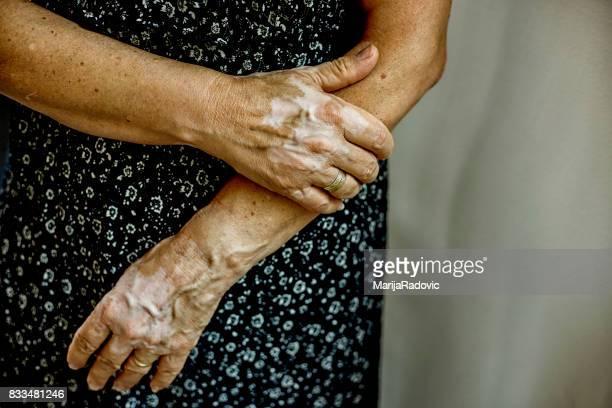 retrato de mulher de vitiligo - melanina - fotografias e filmes do acervo