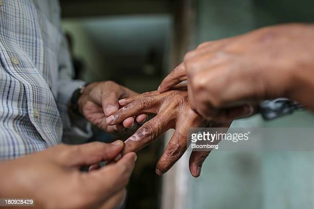 Vivek V Pai doctor and head of the Bombay Leprosy Project left examines a patient's hand for skin lesions at the organization's referral center in...