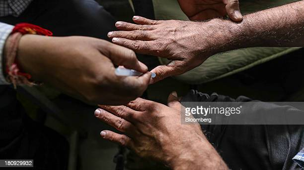 Vivek V Pai doctor and head of the Bombay Leprosy Project left examines a patient's hand at the organization's referral center in Mumbai India on...
