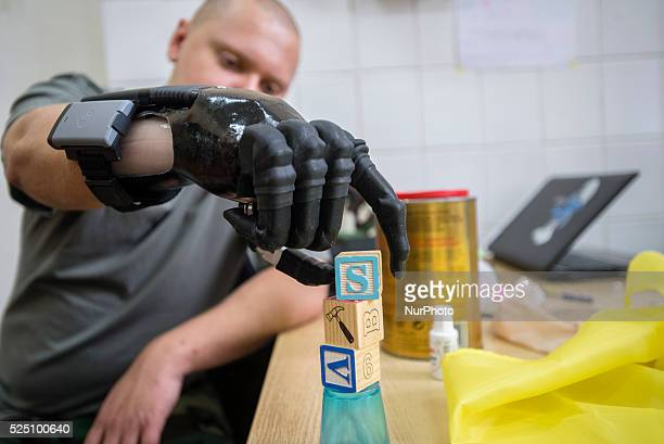 Vlad Kuznetsov a hero from 95th airborne brigade is testing his future hand during Ukraine Prosthetic Assistance Project He saved life of six...