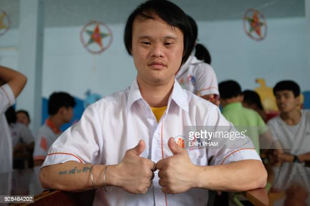 Vo Nhat Truyen who suffers from the affects of Agent Orange poses during a visit by the crew of USS Carl Vinson in Danang on March 7 2018 The US...