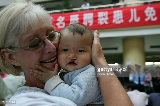 A volunteer nurse from the US holds a child suffering from cleft lip and palate at the Xian Jingxi Hospital during registration for treatment jointly...