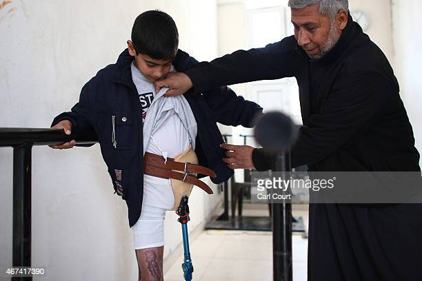 A volunteer shows the injuries sustained by 13 year old Naserlalah Ibrahim who lost his left leg during fighting in Syria as he uses a frame to...