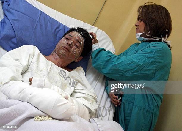 Wagner Andolfato de Souza de 25 anos es atendido por una enfermera en un hospital de Lima el 25 de agosto de 2005 tras sobreivir al accidente el...