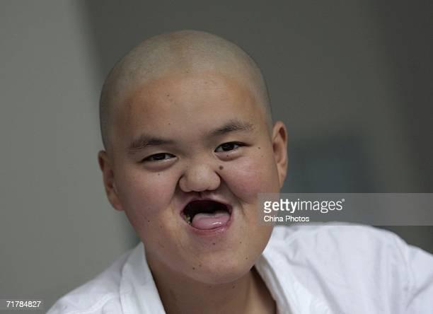 deformed face kid - 612×444