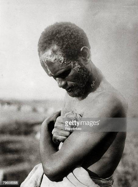 War and Conflict The Abyssinia Italy War pic circa 1936 An Abyssinian soldier showing the effects of mustard gas used by the Italians After border...