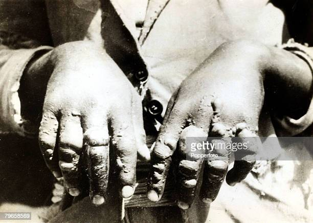 War and Conflict The Abyssinia Italy War pic circa 1936 An Abyssinian soldier with badly blistered hands showing the effects of mustard gas used by...