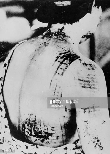 1945 A victim of the Atomic bomb which had been dropped on Hiroshima Japan on 6th August 1945 showing her burns with a pattern made by the kimono she...