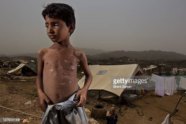 War victim eight year old Abbas is seen at the AlMazraq IDP camps AlMazraq Yemen August 14 2010 Abbas was walking with his uncle in the Sa'ada region...