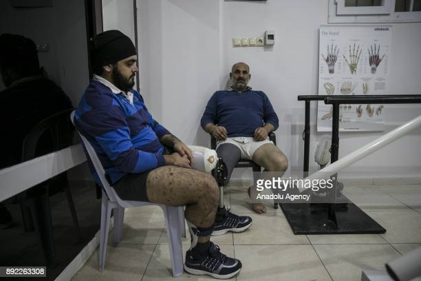 War wearing Syrians who lost their lower extremities due to the ongoing civilwar wait at a medical center in Turkey's Syrian border city Hatay's...
