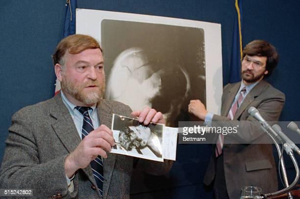 Authors Harrison Linvingston and Robert Groden display a photograph and xray which appear in their new book High Treason during a press conference in...