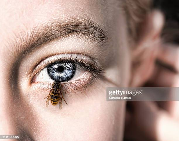 Wasp going into eye