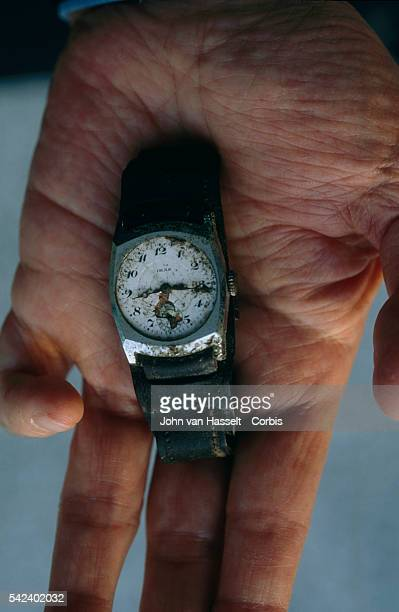 Watch that stopped at 815 AM time of the explosion Held by Hibakusha with deformed finger