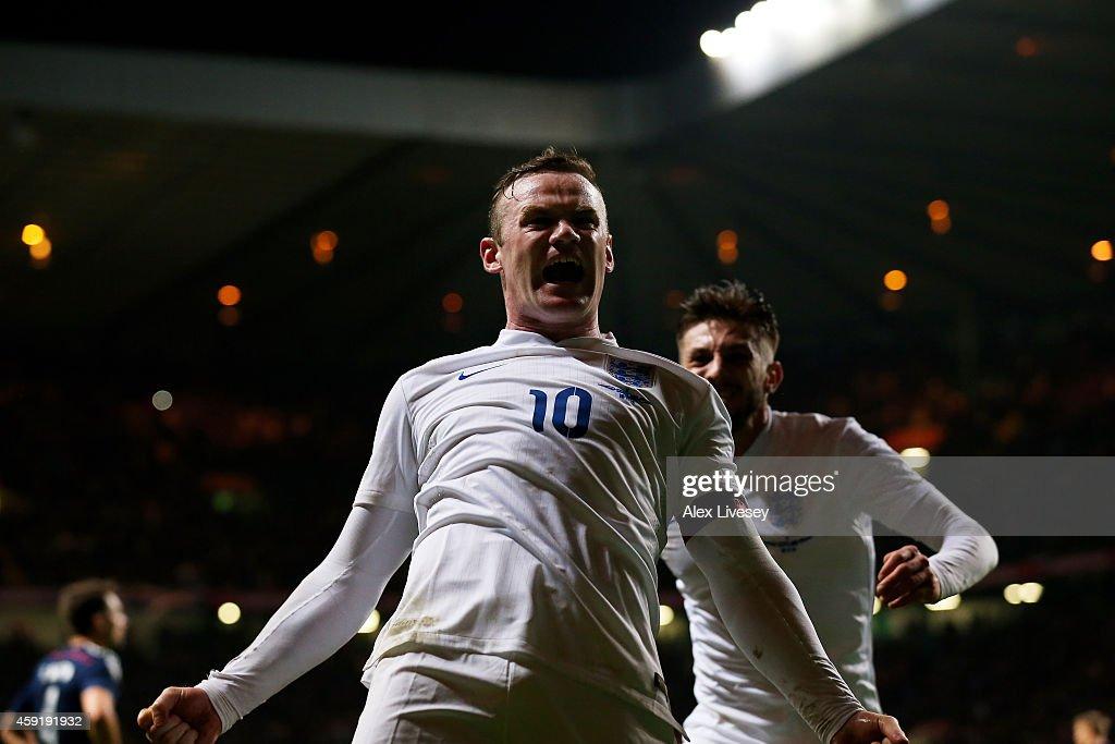 Scotland v England - International Friendly : News Photo