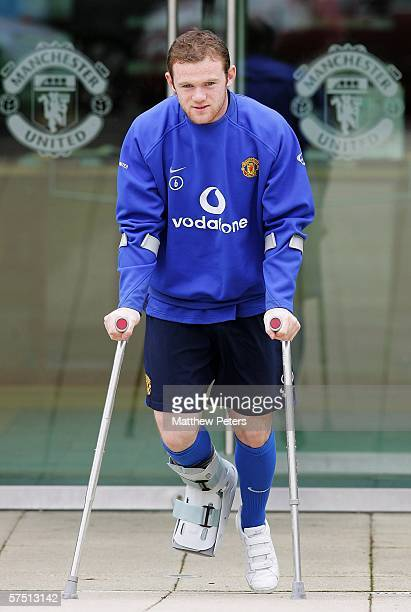Wayne Rooney of Manchester United is pictured as he begins the recovery process after breaking the fourth metatarsal in his right foot at Carrington...