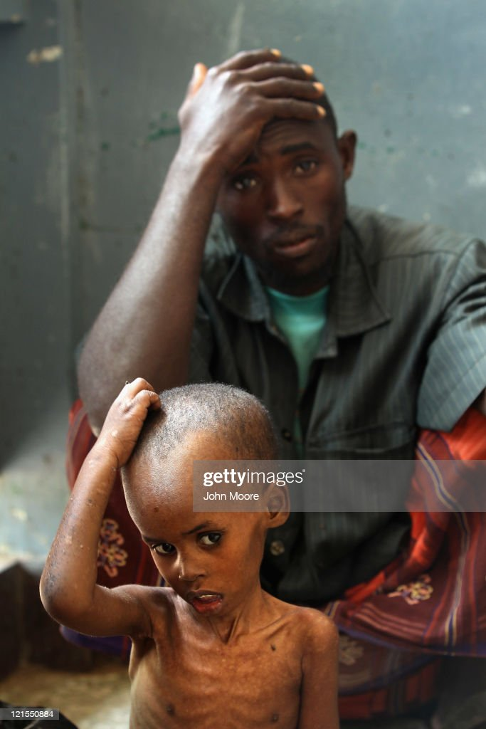 Weak and malnourished, Hassan Ali Musa, 4, sits with his father Iisa Ali Musa at the Banadir hospital on August 20, 2011 in Mogadishu, Somalia. The UN estimates that more than 100,000 Somalis have fled to Mogadishu from famine and drought in the countryside. The US government says that 30,000 children have died in Somalia due to the crisis in the last three months.
