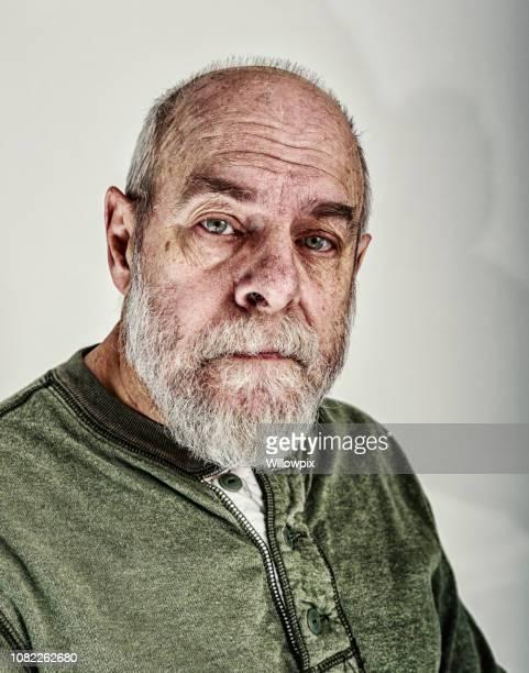 retrato de hombre adulto senior cansado - cancer de piel fotografías e imágenes de stock