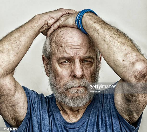 weary senior man cancer chemotherapy medical patient - cancer de pele imagens e fotografias de stock